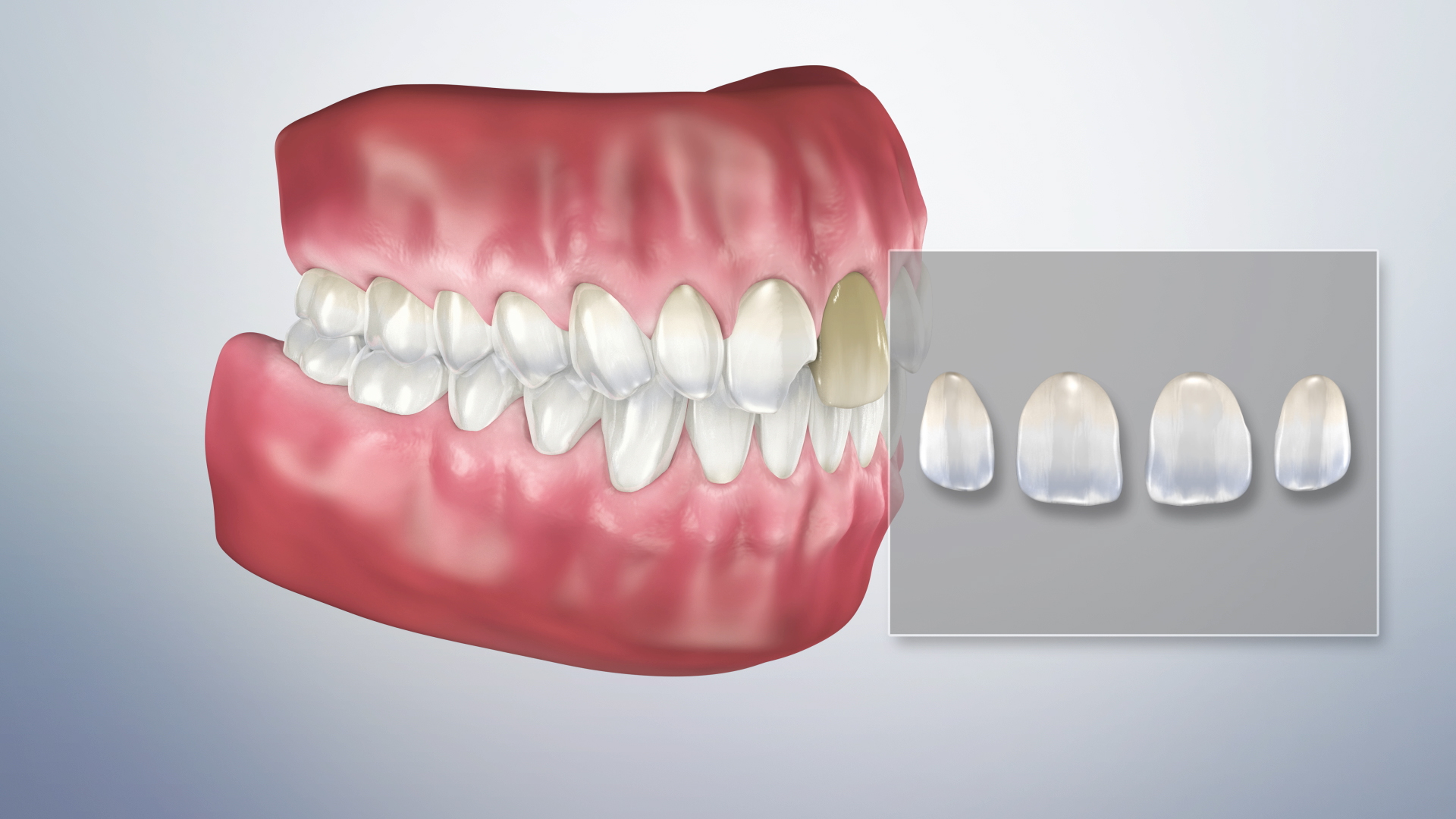 Thumbnail for a video on Veneers (Impression)