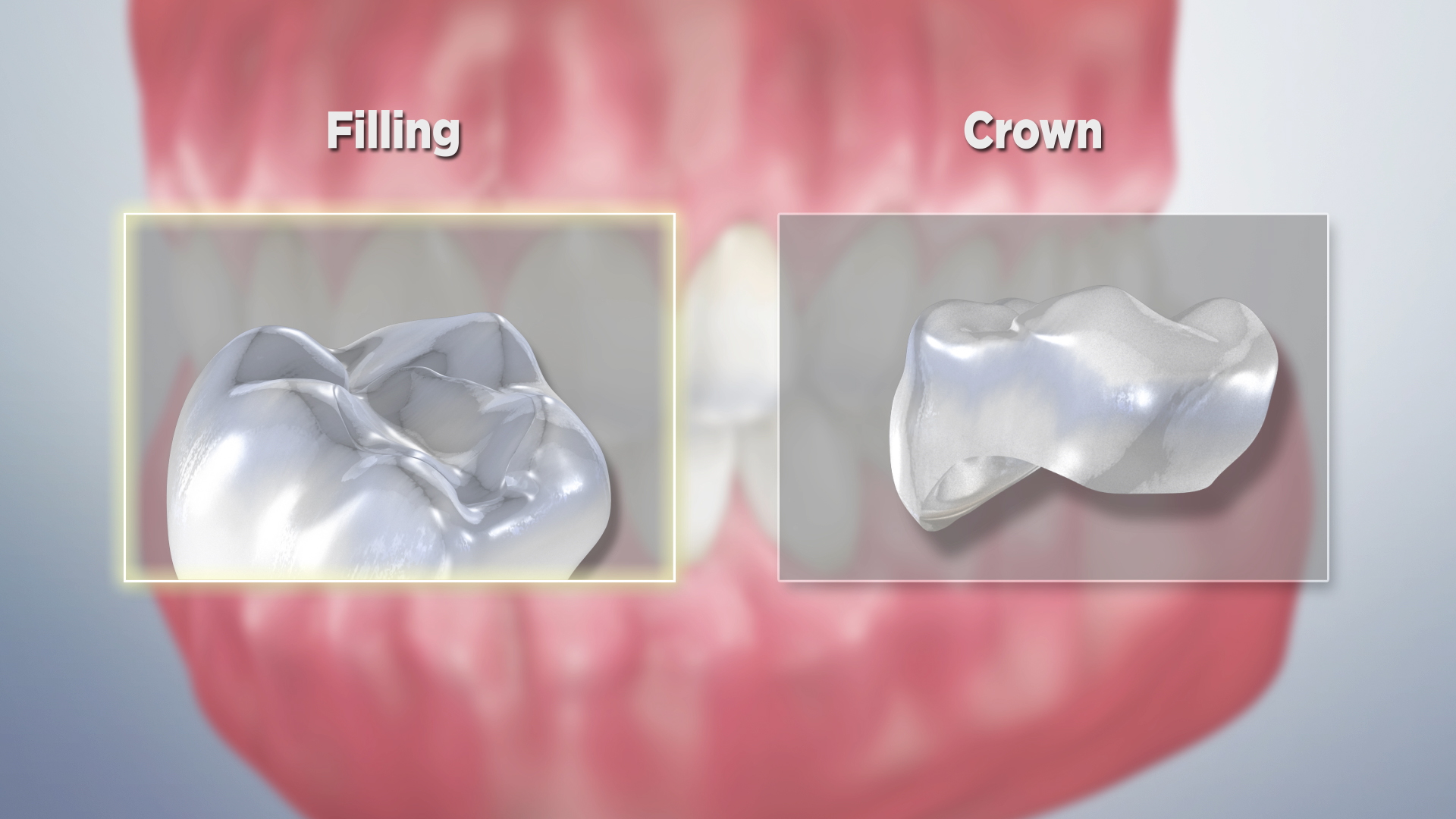 Thumbnail for a video on Filling Versus Crown (Impression)