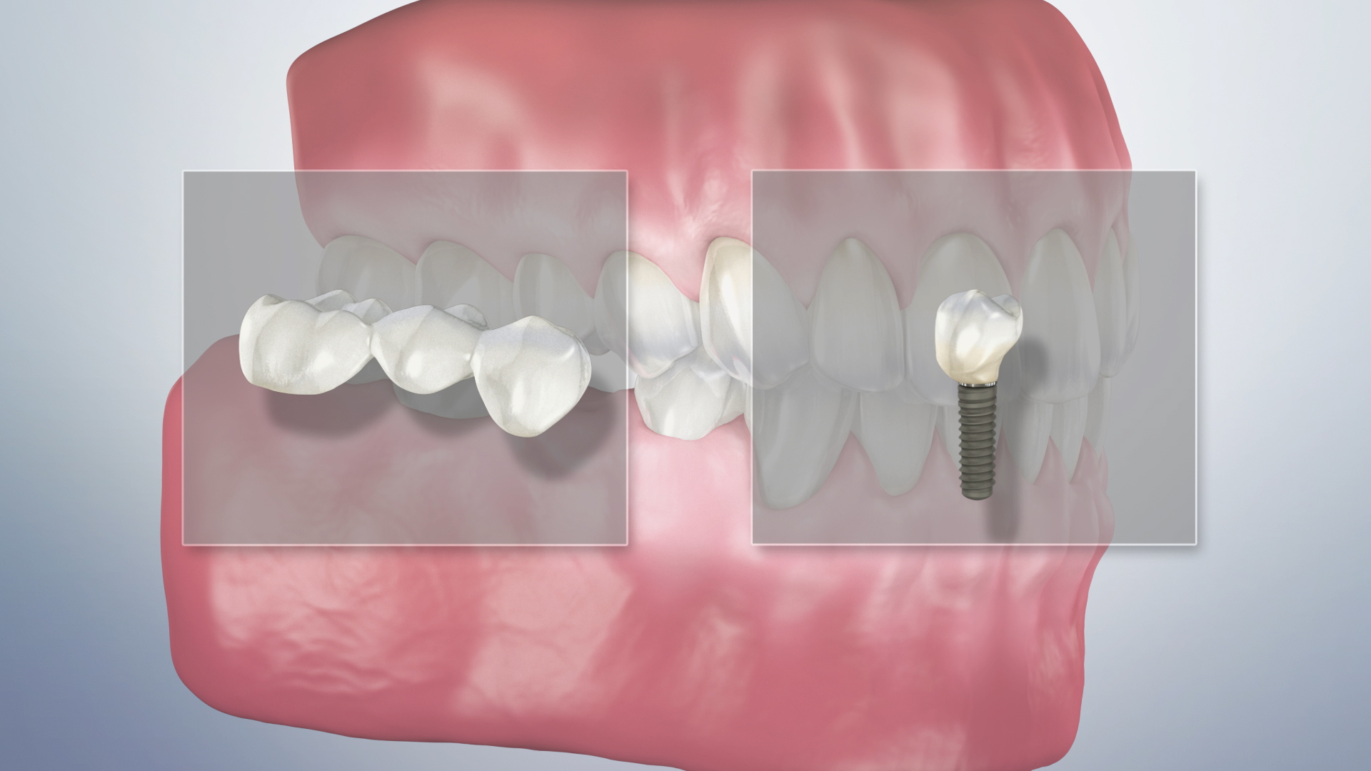 Thumbnail for a video on Bridge Versus an Implant