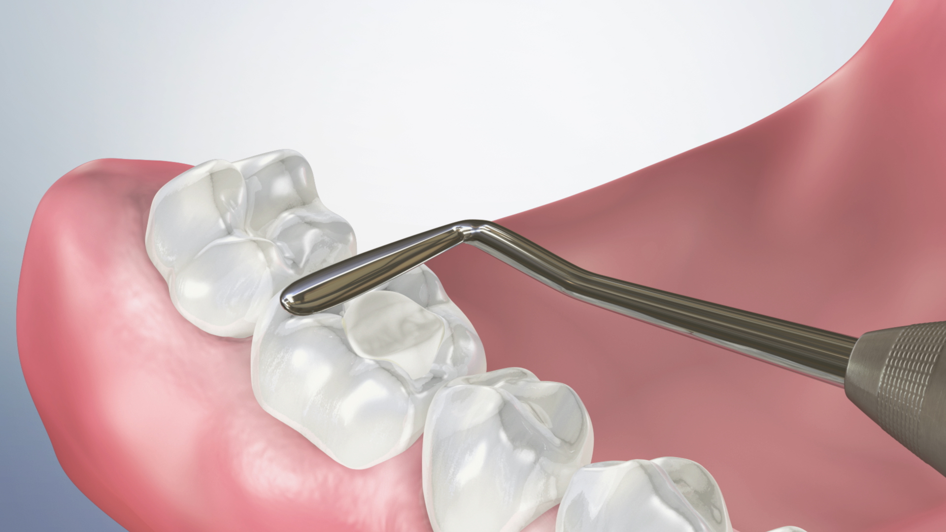 Thumbnail for a video on Composite Filling (Posterior)