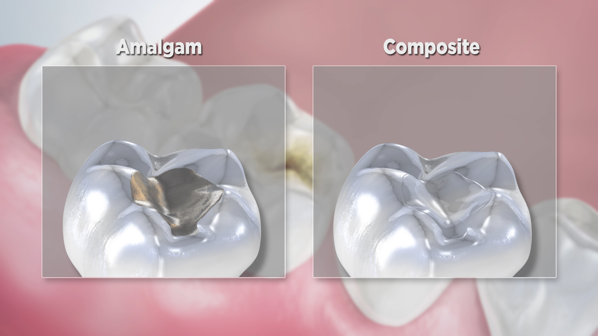 Thumbnail for a video on Composite Versus Amalgam Filling