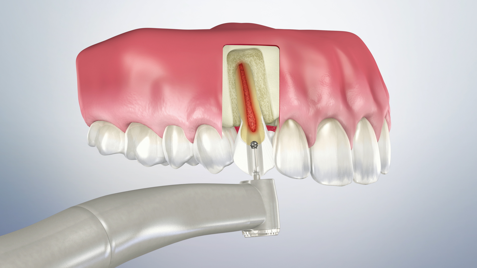 Thumbnail for a video on Root Canal