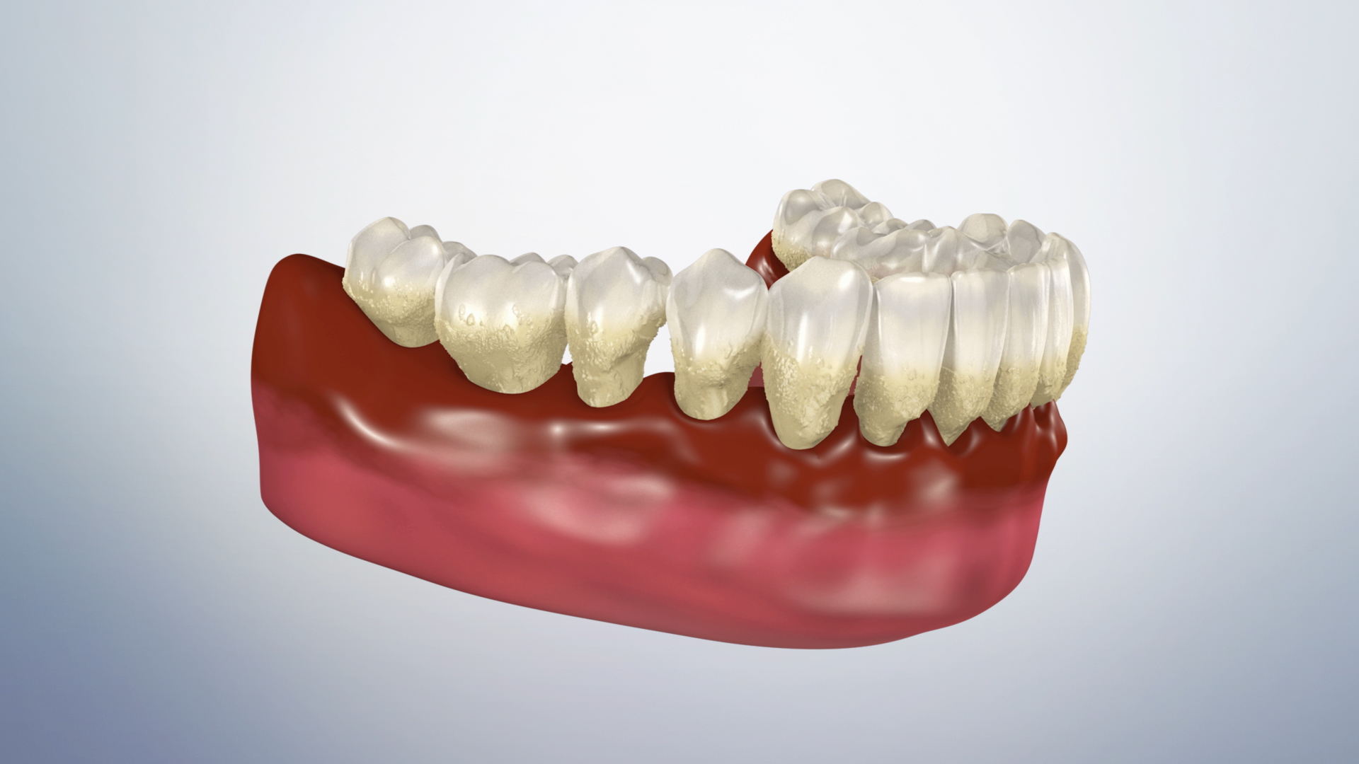 Thumbnail for a video on Periodontitis