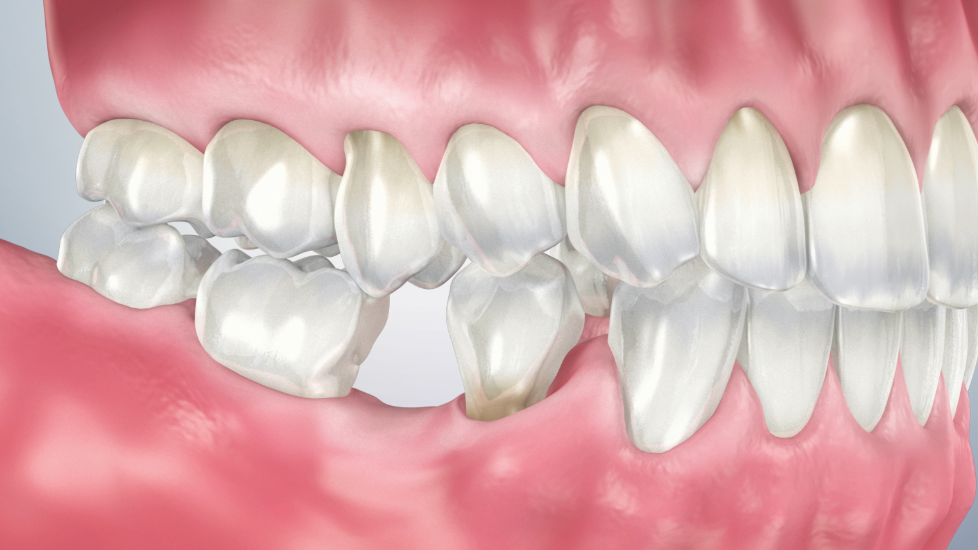 Thumbnail for a video on Single Tooth Loss