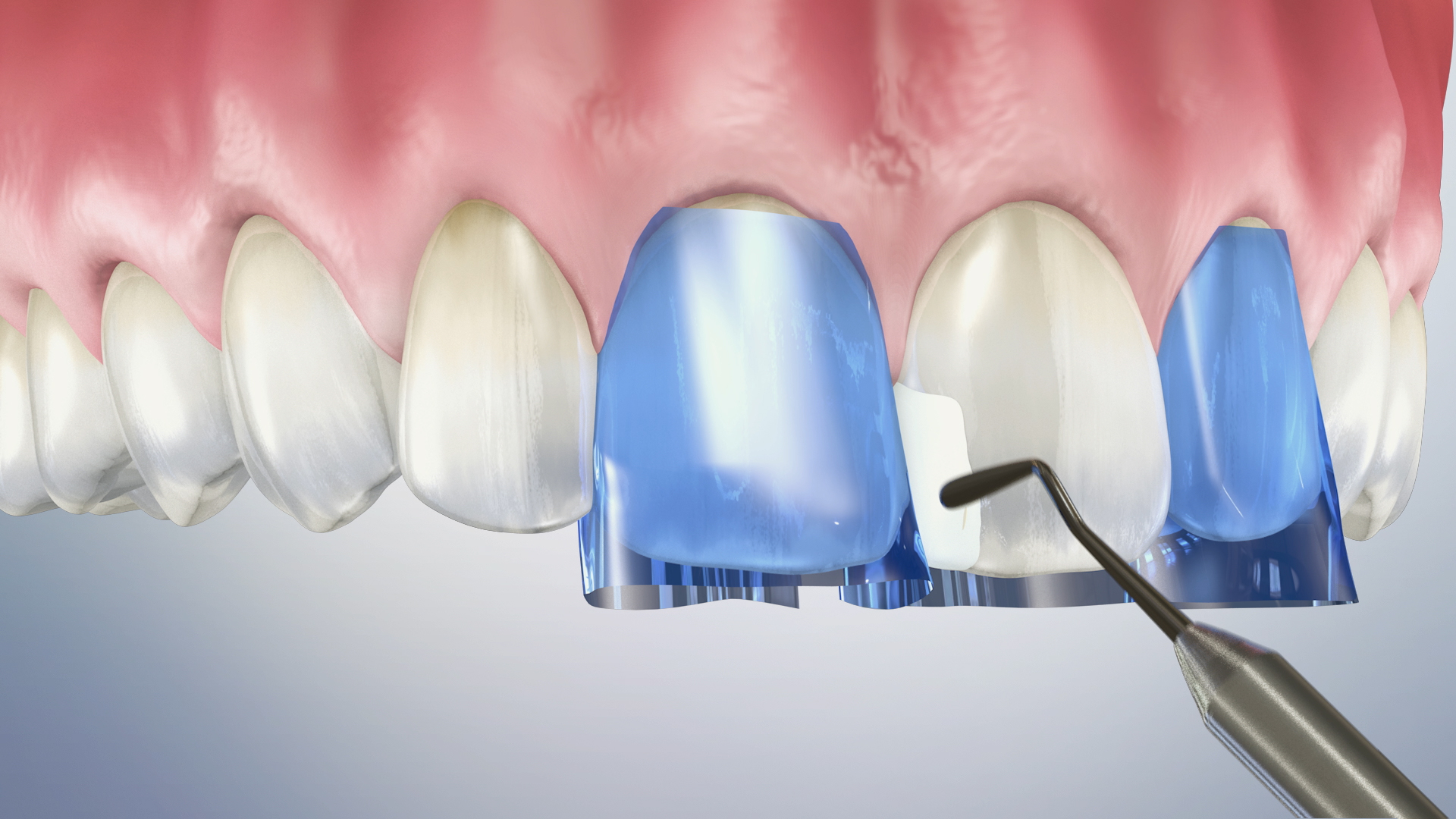 Thumbnail for a video on Composite Filling (Anterior)
