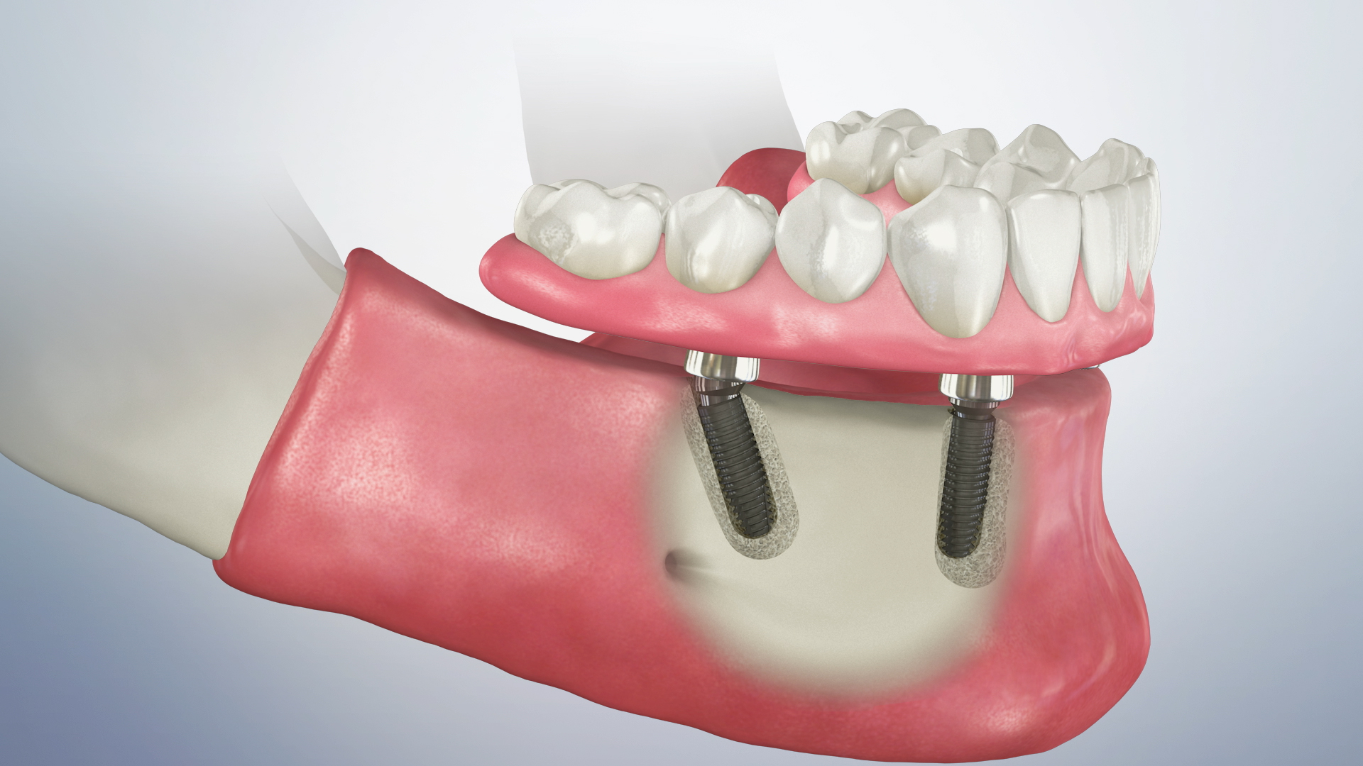 Thumbnail for a video on Fixed Hybrid Dentures
