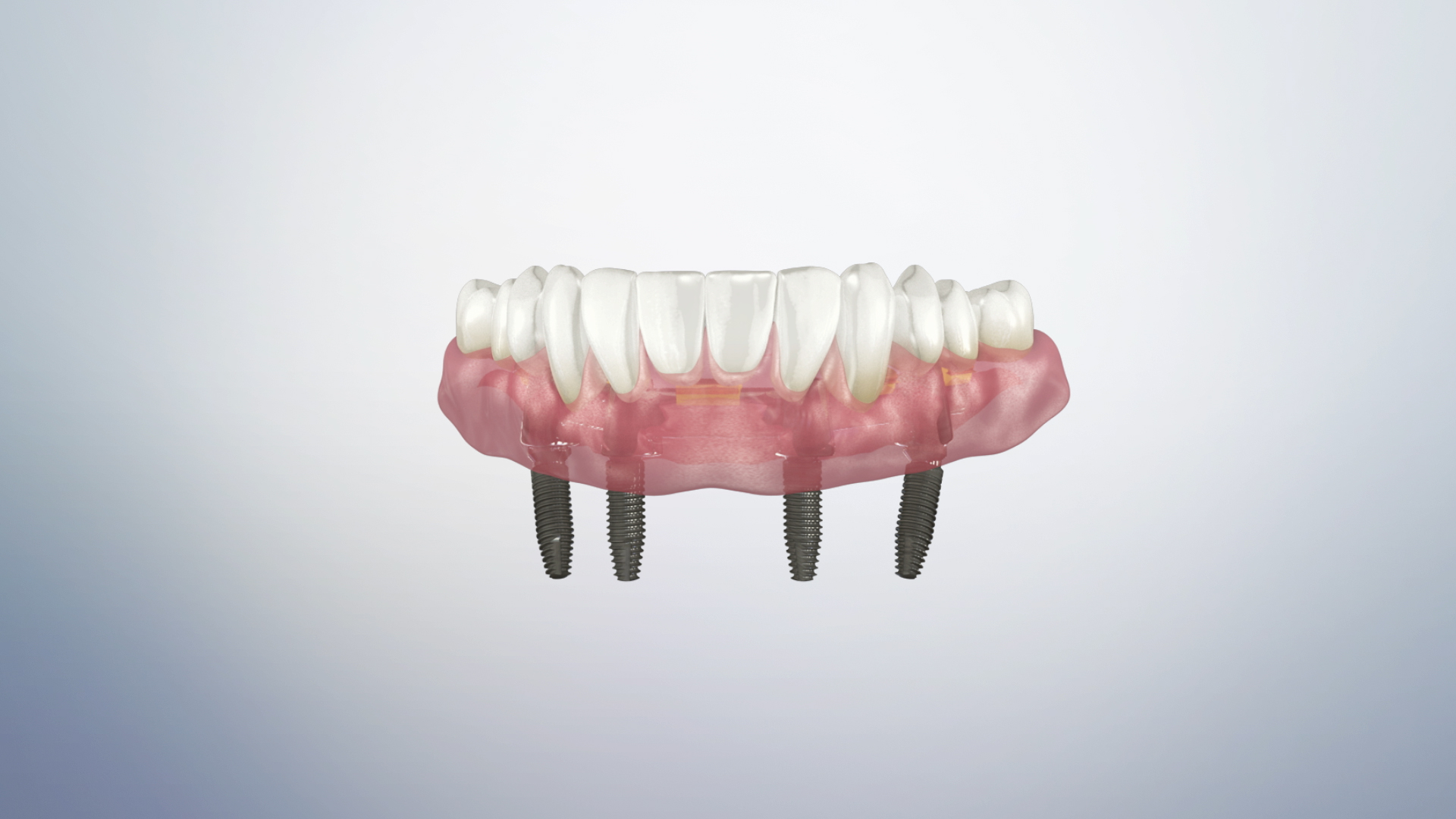 Thumbnail for a video on Bar Retained Overdenture
