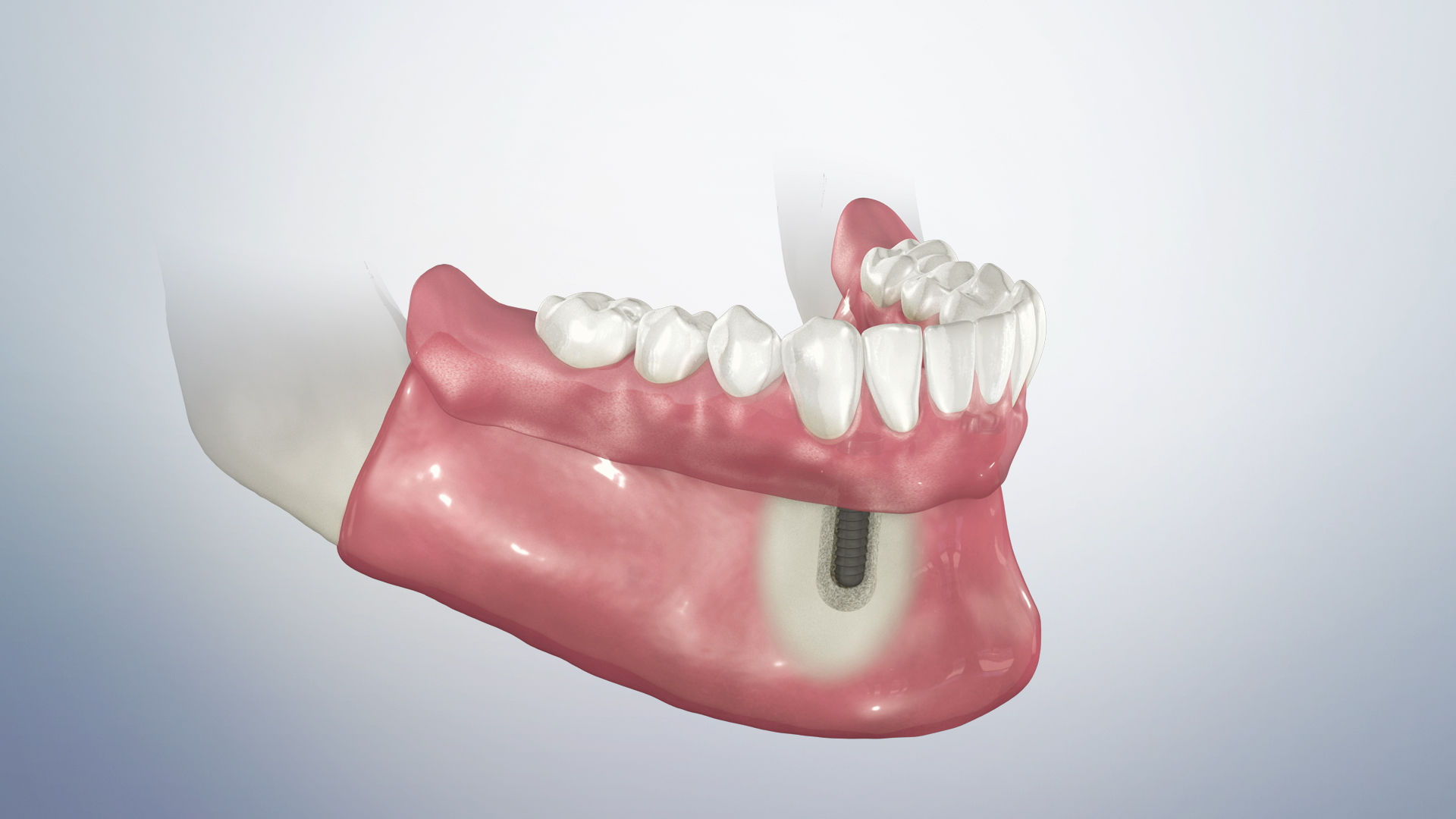Thumbnail for a video on Locator Retained Overdenture