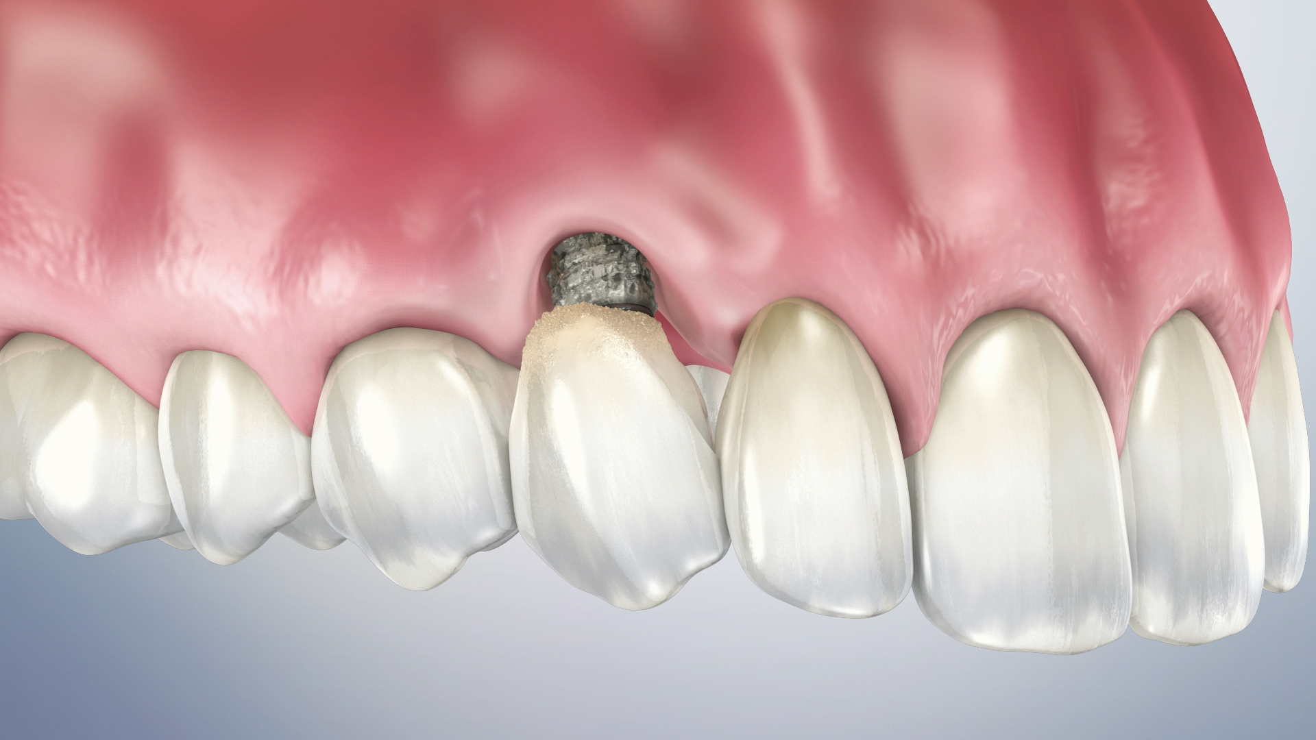 Thumbnail for a video on Peri-Implantitis