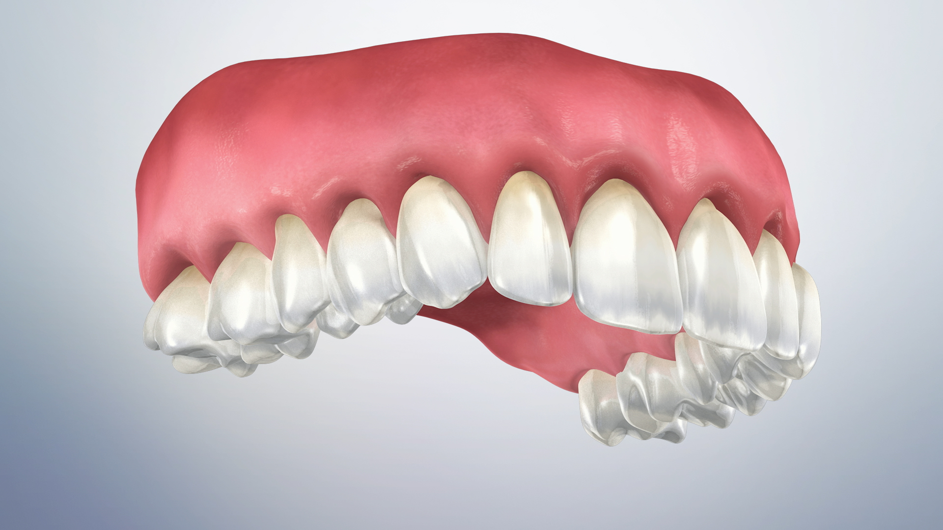 Thumbnail for a video on Gingival Recession