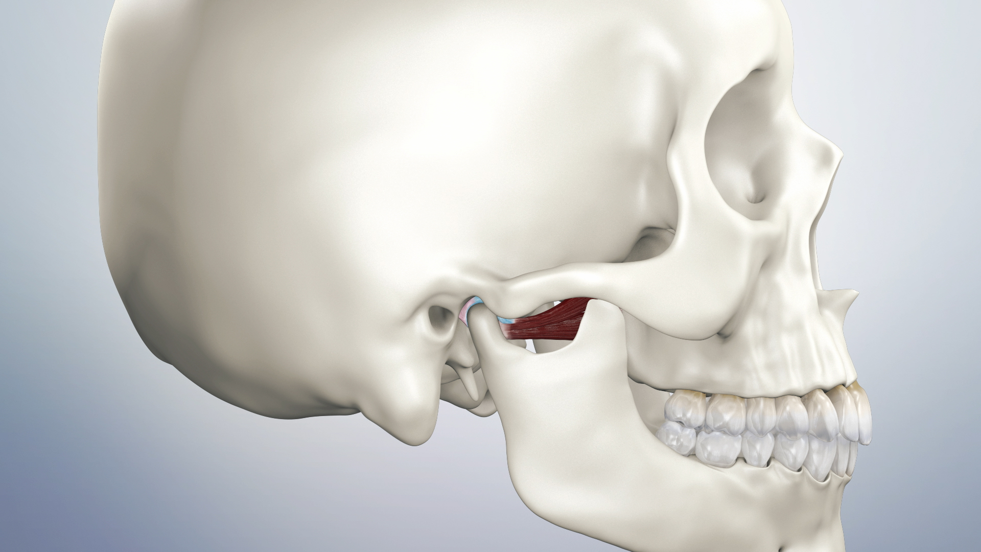 Thumbnail for a video on Temporomandibular Joint Disorder