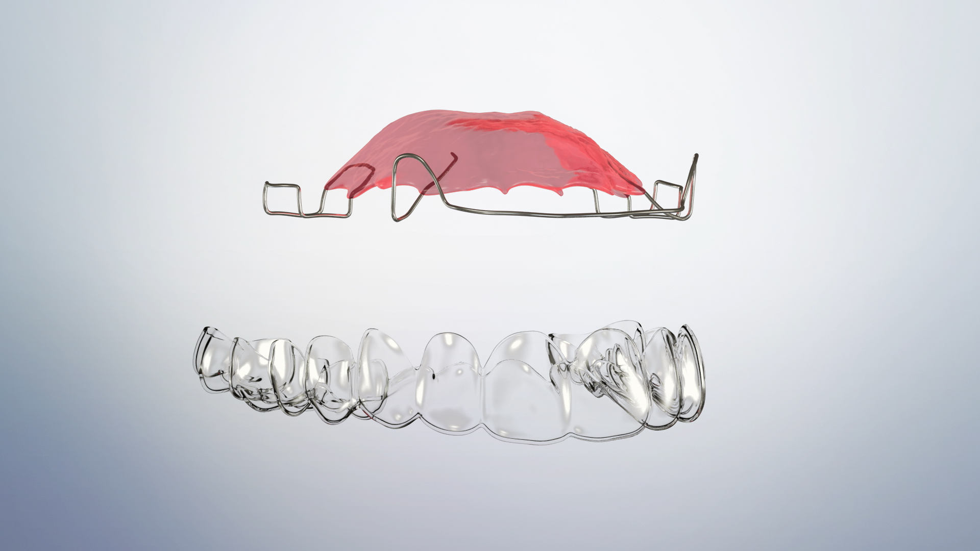 Thumbnail for a video on Orthodontic Retainers- Removable