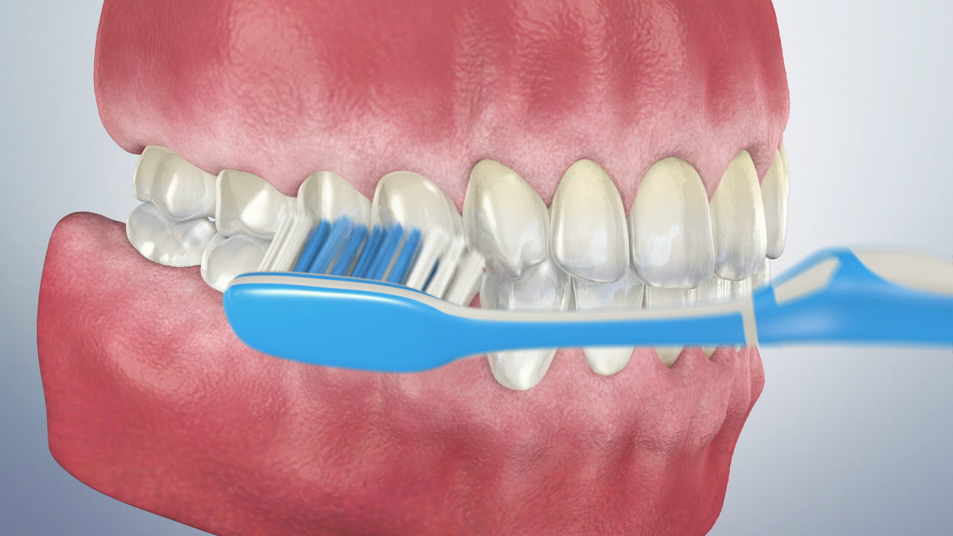 Thumbnail for a video on Proper Toothbrushing Technique