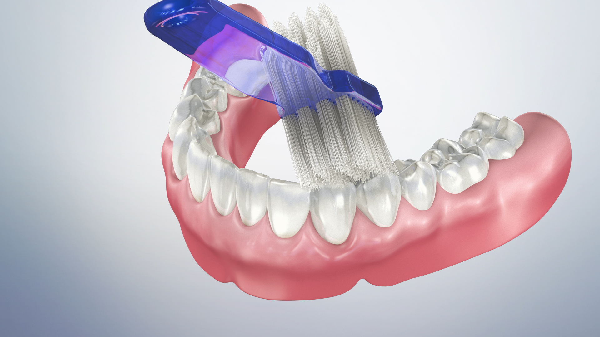 Thumbnail for a video on Home Maintenance for Dentures