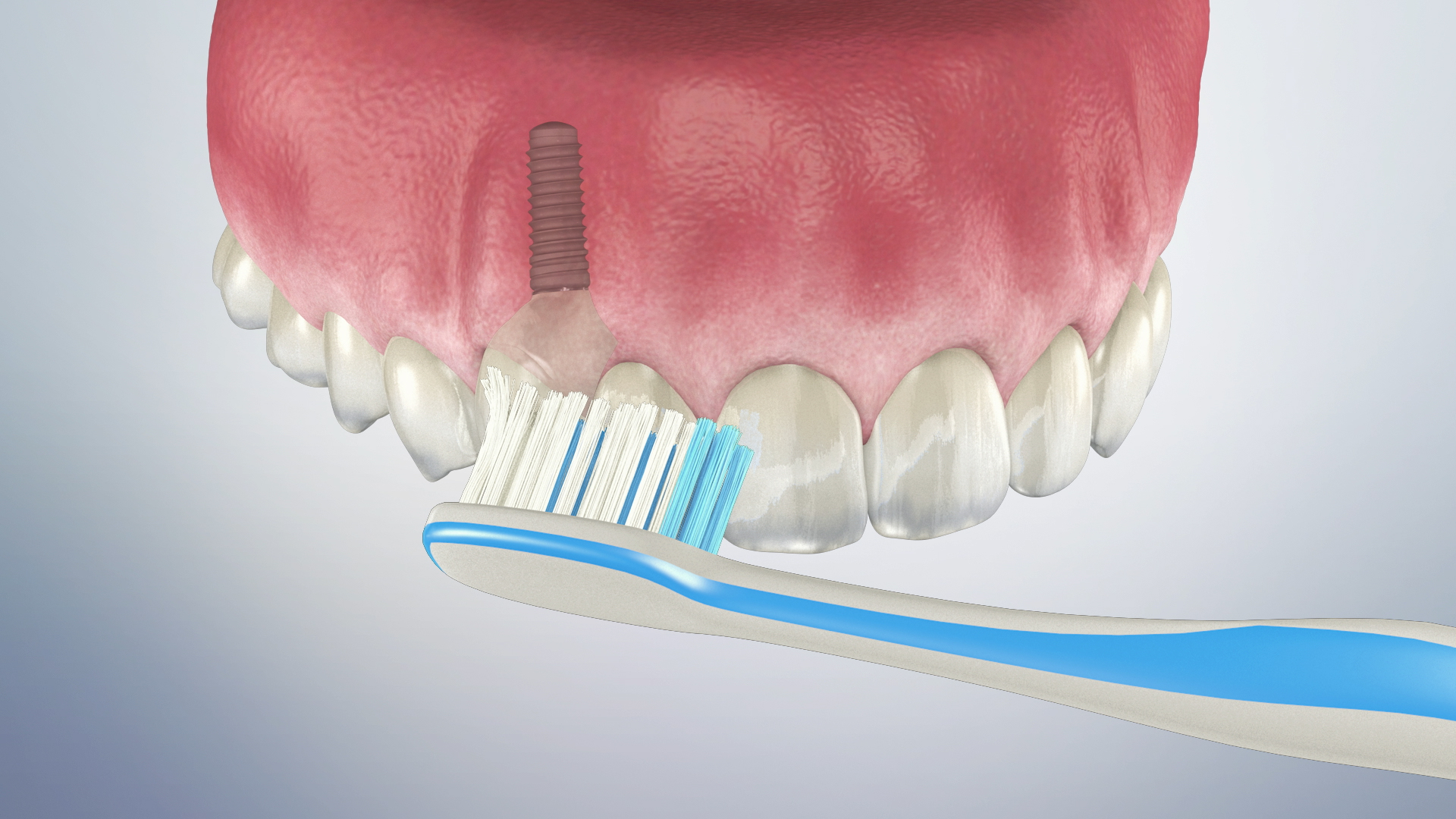 Thumbnail for a video on Caring for a Dental Implant