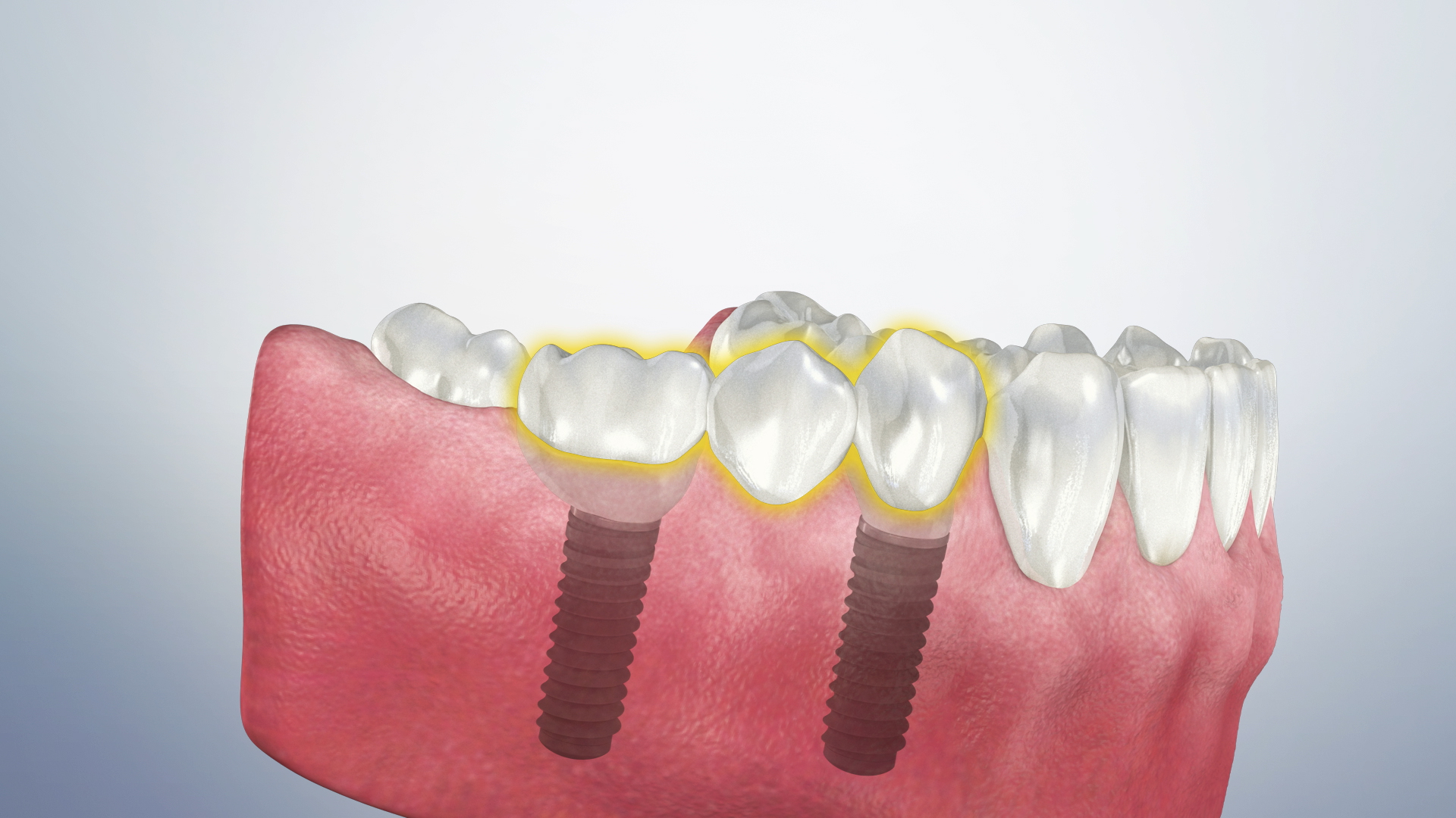 Thumbnail for a video on Caring for a Bridge (Implant-Supported)
