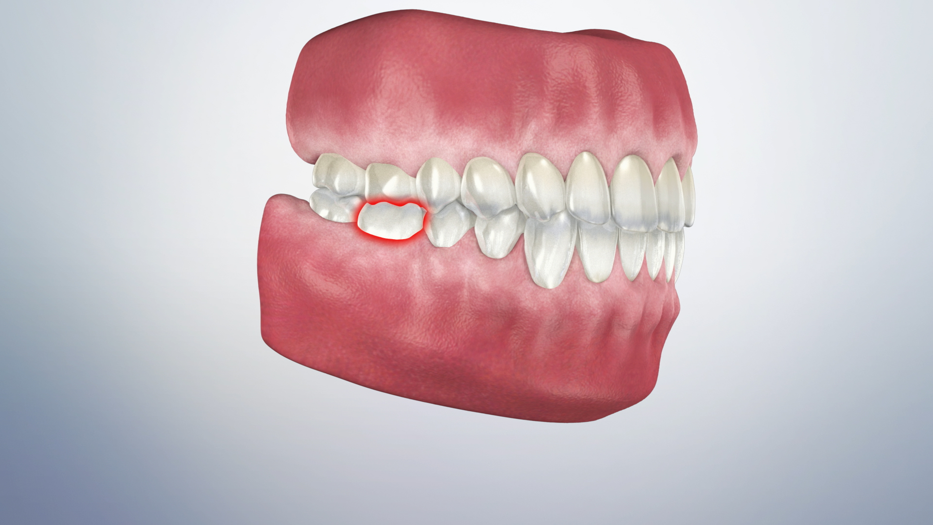 Thumbnail for a video on Causes of Tooth Pain