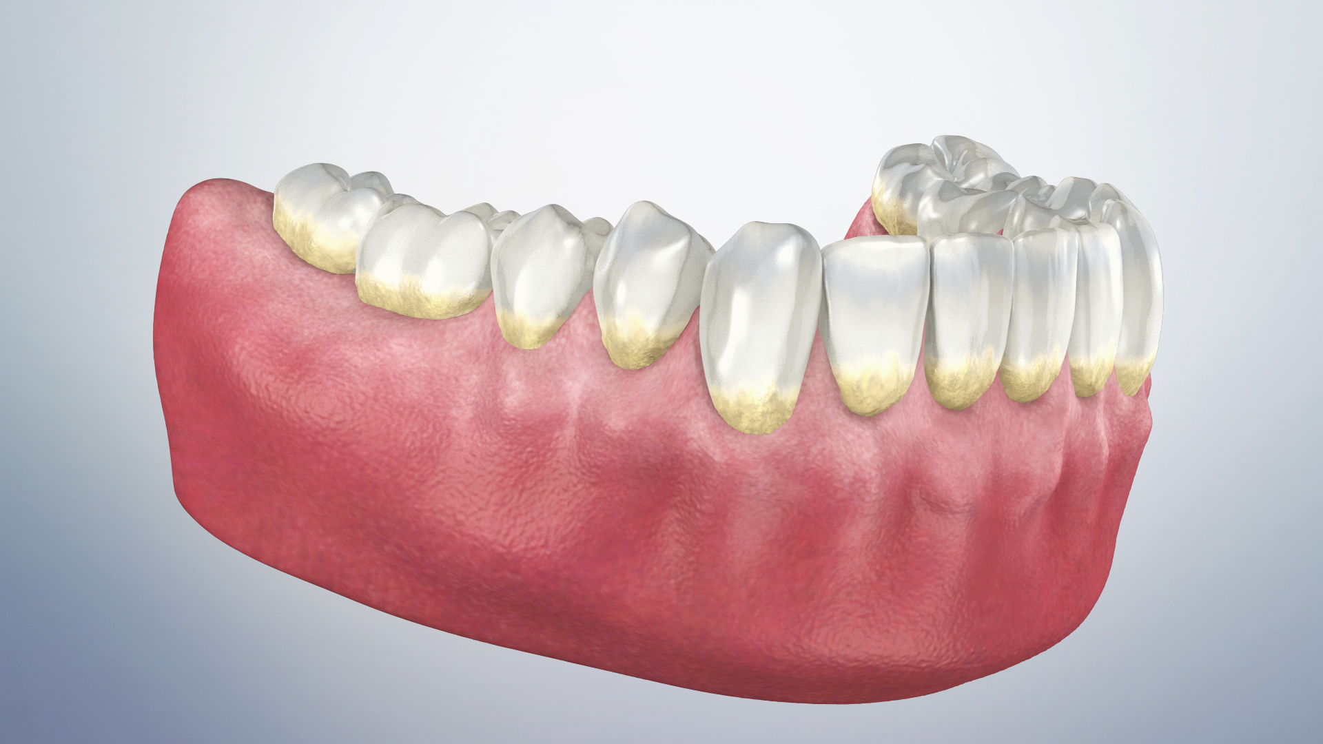 Thumbnail for a video on Periodontal Maintenance Therapy