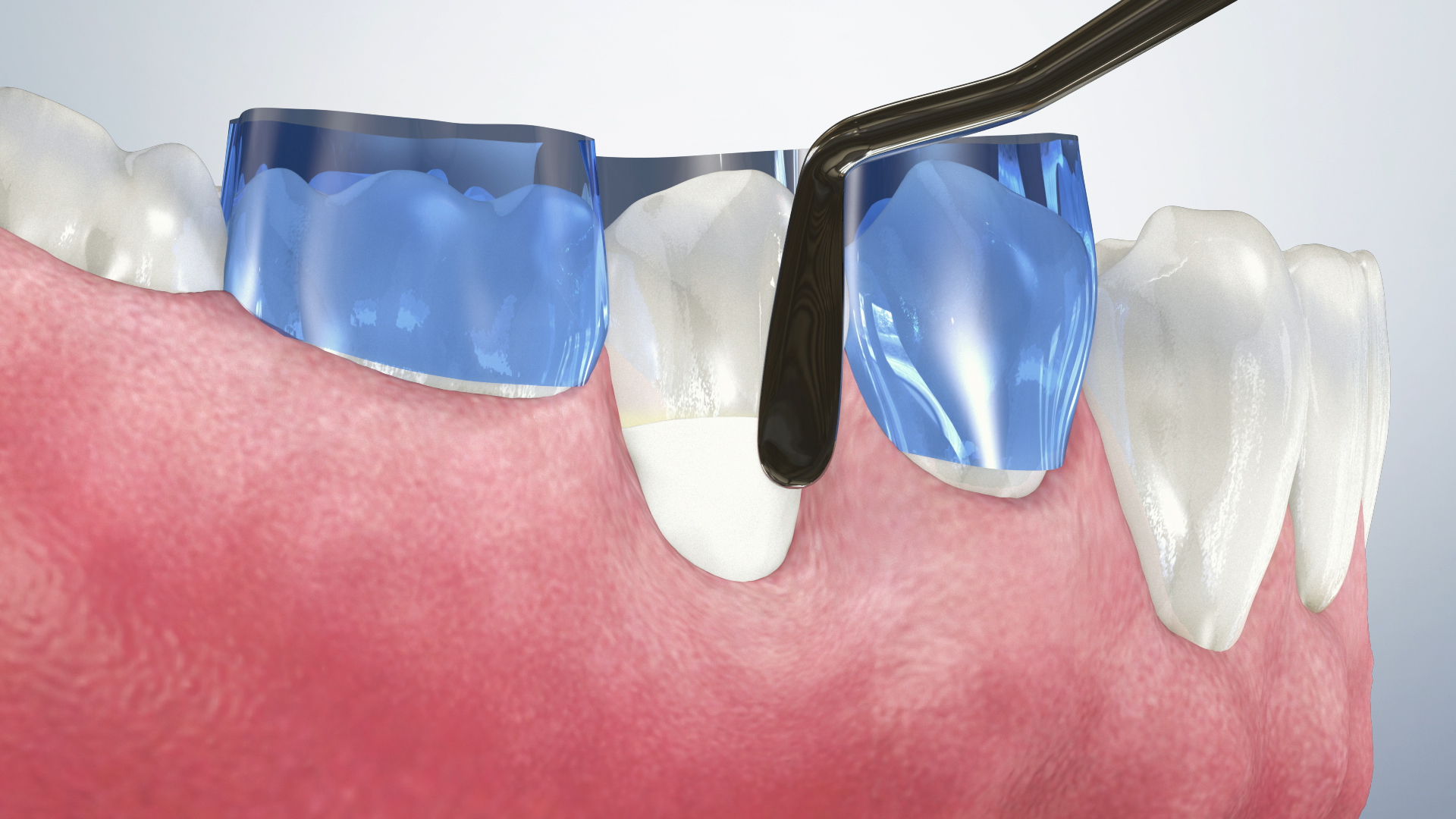 Thumbnail for a video on NCCL/ Abfraction Composite Restorations