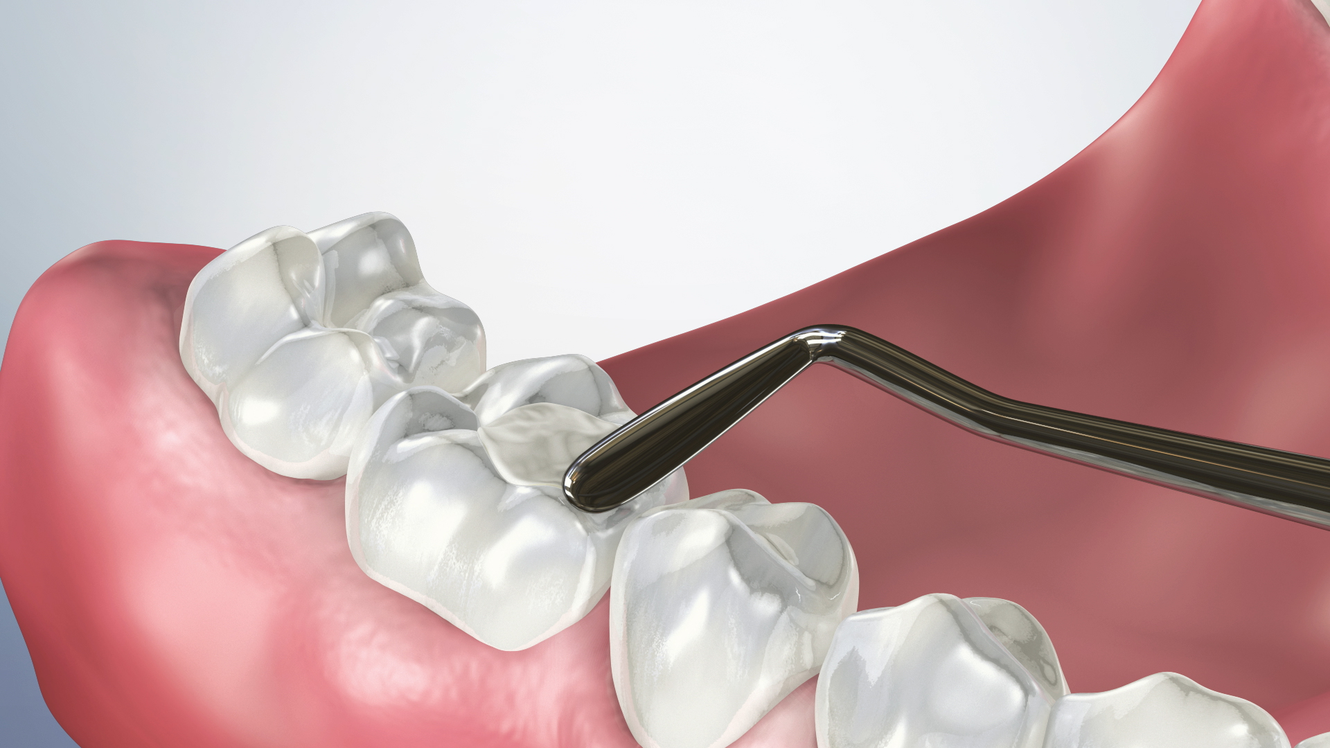 Thumbnail for a video on Post-Operative Instructions for a Composite Filling