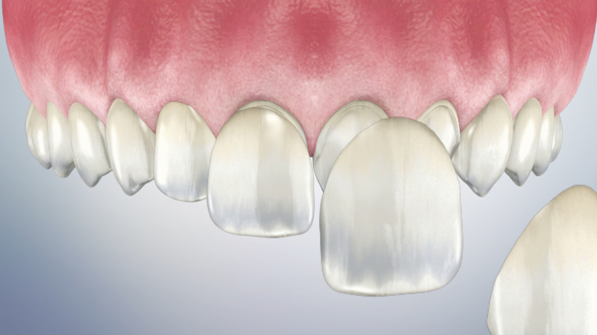 Thumbnail for a video on Post-Operative Instructions for Permanent Veneers