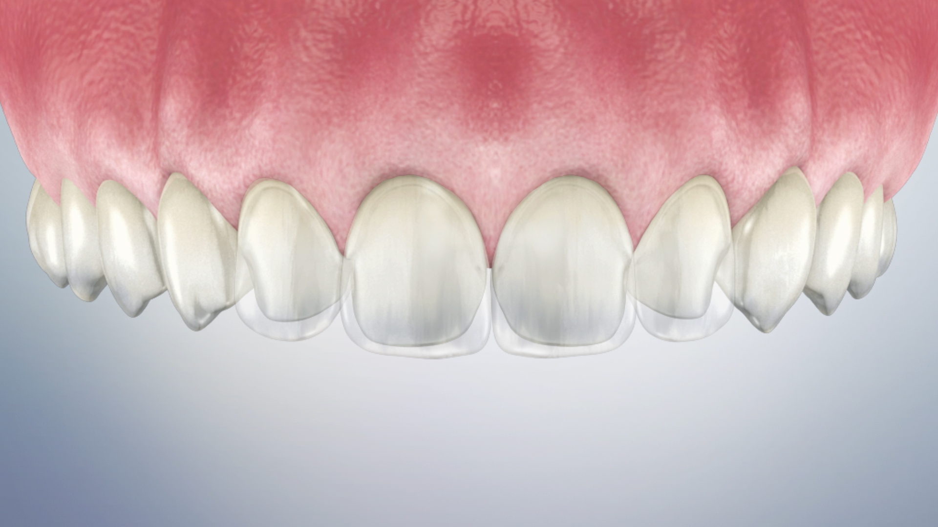 Thumbnail for a video on Post-Operative Instructions for Temporary Veneers