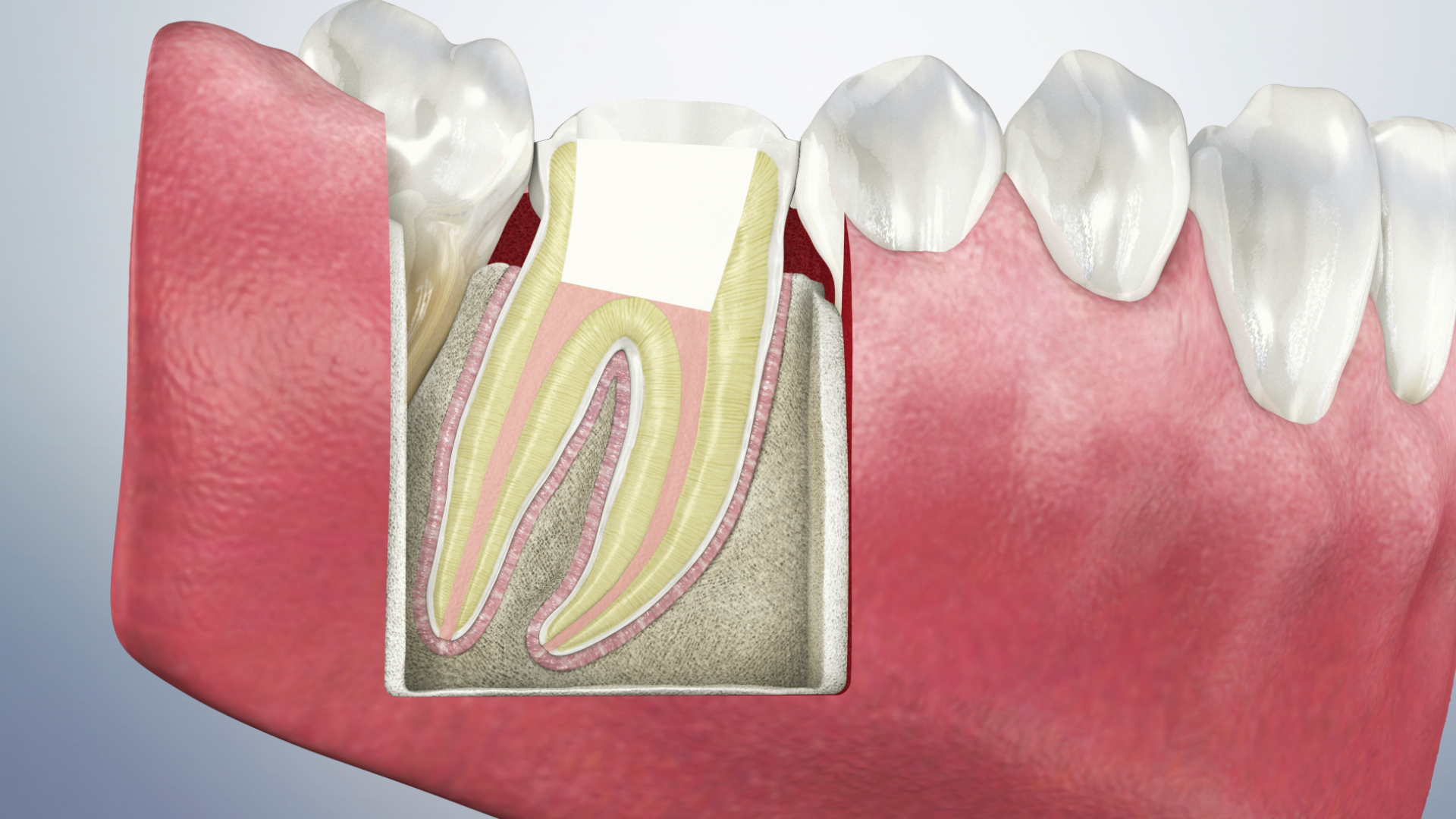 Thumbnail for a video on Post-Operative Instructions for a Root Canal