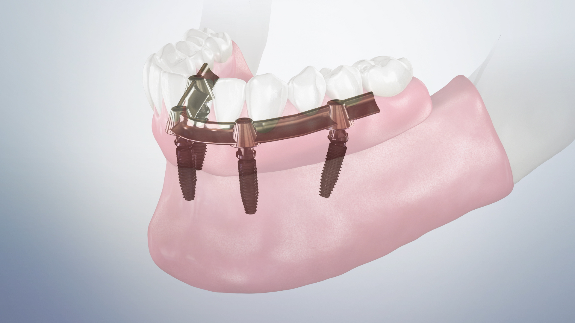 Thumbnail for a video on Post-Operative Instructions for Fixed-Hybrid Denture Placement