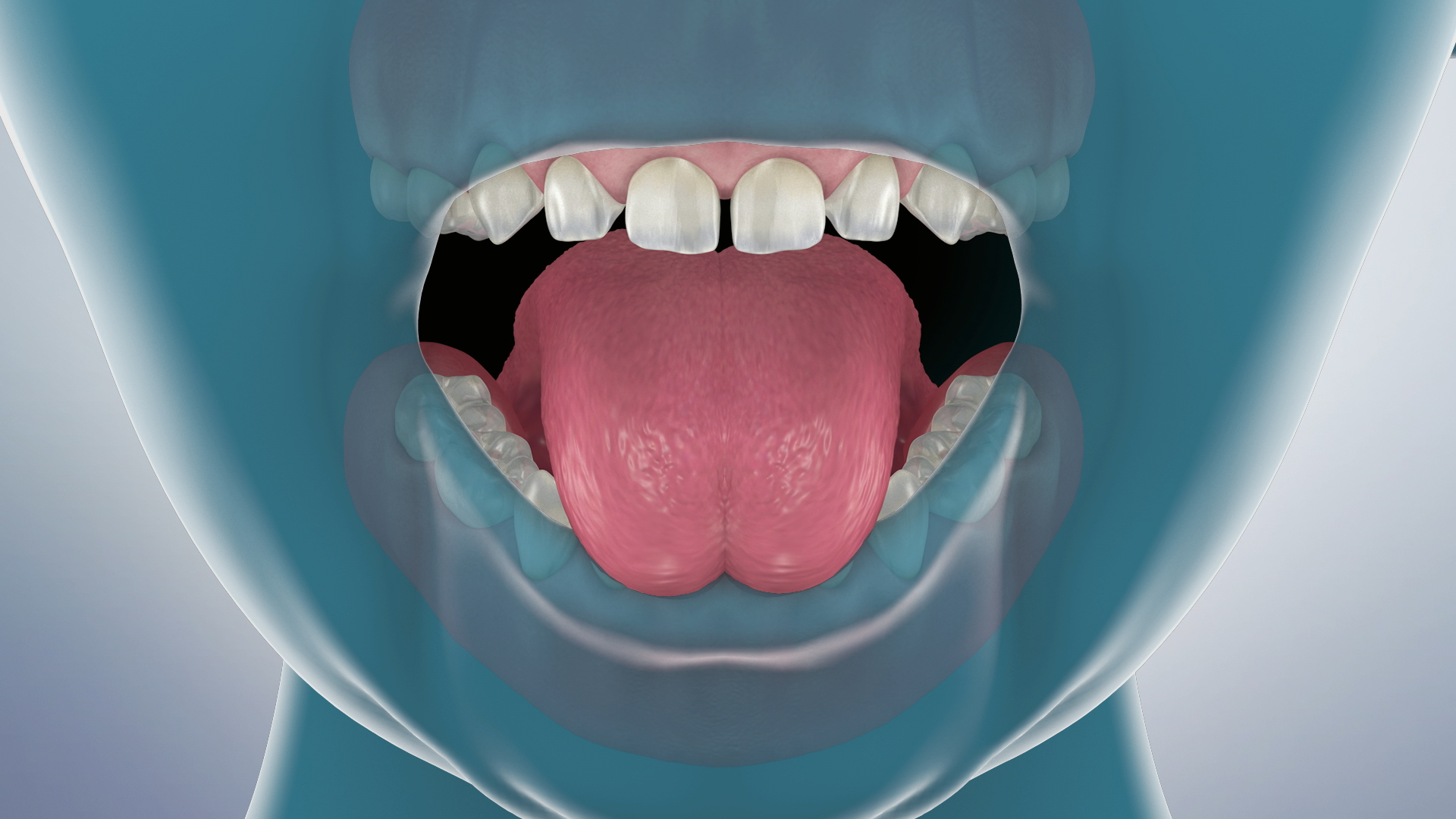 Thumbnail for a video on Lingual Frenectomy