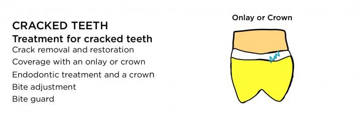 how to fix craze lines in teeth