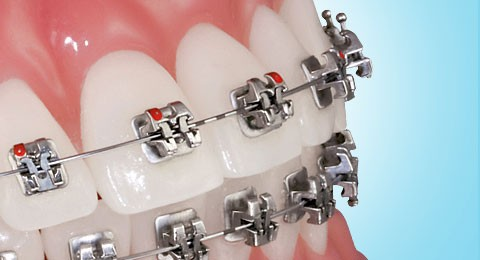the orthodontic-restorative connection